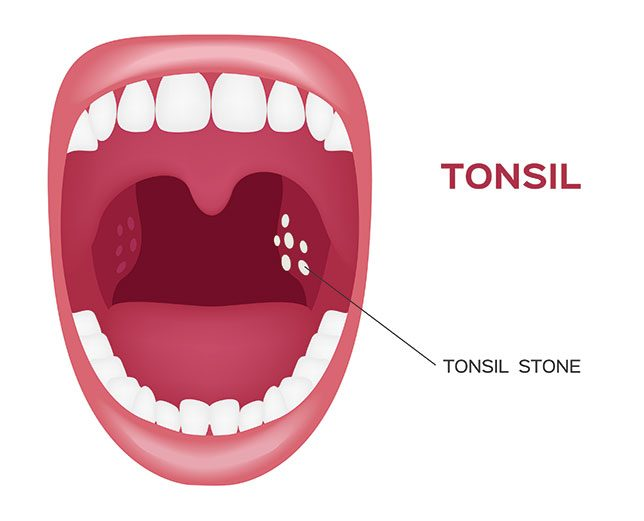 Tonsil stones how to remove