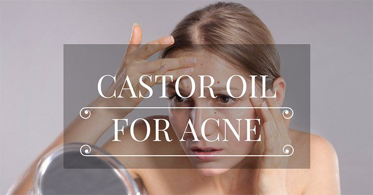 Castor Oil for Acne – All You Need to Know to Solve Your Acne Problems