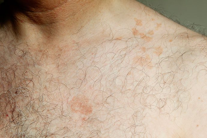 is tinea versicolor caused by diet?