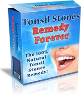 Tonsil Stones Remedy Forever