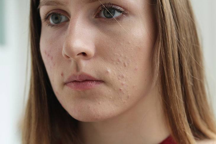 does biotin cause acne breakouts