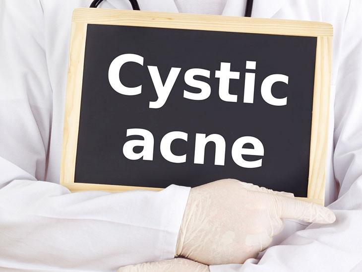 How to Identify Cystic Acne