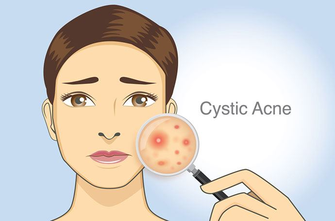 Causes of Cystic Acne