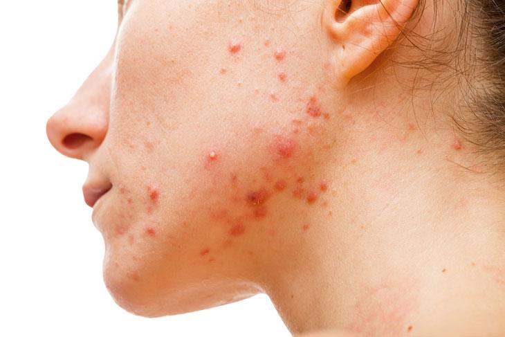 cystic acne treatment at home